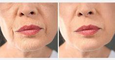 Some Effective Home Remedies For Wrinkles Free Skin - Skin Tightening, Skin Firming, Cosmetic Surgery Prices, Anti Aging, Home Remedies For Wrinkles, Reverse Aging, Eye Wrinkle, Skin Care Cream, Sagging Skin
