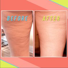 **The best one: Dry brush + Coconut oil Tested 12 Home Remedies To Get Rid Of Cellulite. Only one method was the most effective way to get rid of cellulite after 30 days: Rub coconut oil on affected skin, then use a dry brush to massage and smooth. Cellulite Remedies, Anti Cellulite, Cellulite Exercises, Cellulite Workout, Reduce Cellulite, Homemade Beauty, Diy Beauty, Beauty Spa, Health And Beauty Tips