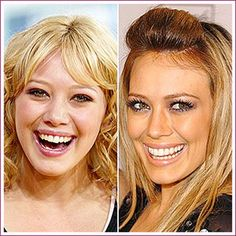 Hilary Duff before and after surgery