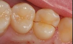 How To Recognize the 5 Types Of Tooth Cracks