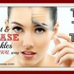 Top 10 Ways to Prevent Wrinkles Naturally