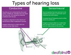 There are two main types of hearing loss, conductive and sensorineural.good parental resource