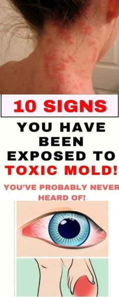 10 Signs You Have Been Exposed To Toxic Mold! - - 10 Signs You Have Been Exposed To Toxic Mold! 10 Signs You Have Been Exposed To Toxic Mold!-- Begin Yuzo --><!-- without result -->Related Post Nach einer Weile (manchmal einer recht kurzen Weil. Avocado Smoothie, Medical Problems, Health Problems, Healthy Beauty, Healthy Tips, Healthy Habits, Stay Healthy, Healthy Food, Healthy Drinks