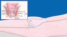 Les 7 Signes avant-coureurs du cancer du rectum … Ne soyez JAMAIS embarrassé pour en parler !!