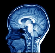 The Amount of Gray Matter in Your Brain May Predict If You'll Stick to Your Diet