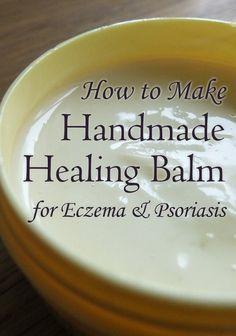 Handmade Healing Cream for Eczema  Psoriasis