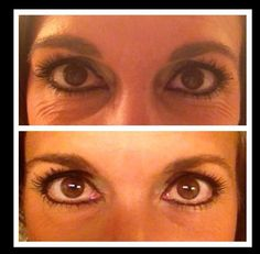 Our eye cream is simply amazing....real results.