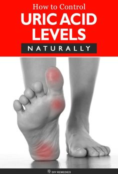natural medicine for gout fruits and vegetables good for uric acid uric acid gout symptoms