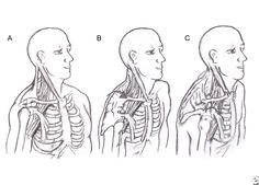 Upper Crossed Syndrome and Postural Thoracic Outlet Syndrome. Time to reverse all the damage!
