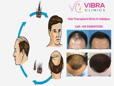 https://www.joomag.com/magazine/how-to-resolve-the-problem-of-hair-baldness/0601972001481104422#edit How to resolve the Problem of hair Baldness Hair Transplant is an operation to replace or restore one's lost hair and hairline. It is the action of hair transplanting follicles taken from the back area of the head where hair is dense, to the parts of the head where hair is scarce with an appropriate operation. http://www.vibraclinics.com/