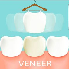 Veneers are a thin porcelain covering that changes the shape colour or size of a tooth. #veneer #beforeandafter #dentistry #odonto #dentist #dentista #dental #dentistrylife #dentalassistant #teeth #dentalsurgery #odontolove #enamel #hygiene #dentalschool #dentalhygienist #odontologia #dentes #instadentist #dentalhumor #dentalgram #healthyteeth #instateeth #dentalnurse #dentalphotogaphy #teethfaq for repost #anatomy #likemyrecent #whitening