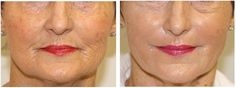 Using your own stem cells and growth factors, skin becomes naturally more resilient and youthful!  Science is amazing!  Synergi Med Spa in Chesterfield MO  offers PRP!  Amazing technology with minimal downtime.