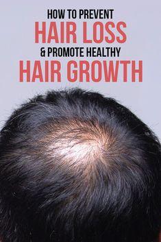 Best Hair Loss Treatment, Hair Growth Treatment, Hair Growth Solution, Stop Hair Loss, Prevent Hair Loss, Men Hair Loss, Home Remedies For Hair, Hair Loss Remedies, Healthy Hair Growth