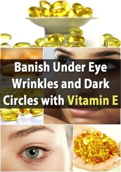 While Vitamin E is found naturally in some foods, the best way to beat under eye issues is to use Vitamin E capsules. You can simply use a pin to open a small area on the end of the capsule, squeeze out the Vitamin E and then apply it under and around your eyes, being careful not to get it in your eyes