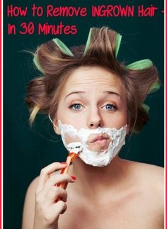 Homemade natural ingrown hair removal mask - Great improvement in 30 minutes!