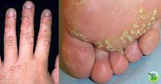 Animales heel bile spur tratament, Hpv foot wart treatment, Hpv broken skin