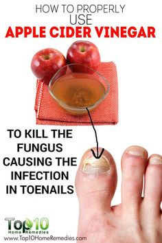 Super Easy Apple Cider Vinegar Home Remedy to Get Rid of Toenail Fungus Fast at Home!