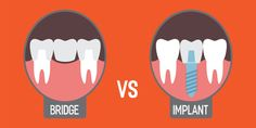 Dental Bridges vs Implant #Dental #bridges can stay longer around 8-10 years and needs to be replaced. But, #Dental #implants can stay around 40-45 years or more by taking proper oral care.