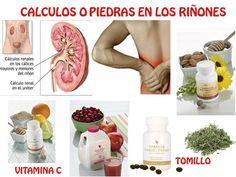 Calculos renales.           vivirporconviccion.webnode.es