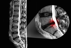 Cause: Herniated Disk  The most common cause of sciatica is a herniated disk. Disks act like cushions between the vertebrae of your spine. These disks get weaker as you age and become more vulnerable to injury. Sometimes the gel-like center of a disk pushes through its outer lining and presses on the roots of the sciatic nerve. About 1 in 50 people will get a herniated disk at some point in life. Up to a quarter of them will have symptoms that last more than 6 weeks.