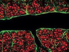 Brain barrier opened for first time to treat cancer