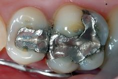 Most dentists will probably never admit that the dental material placed in your mouth can be the cause of many diseases and disorders. Conventional dentistry procedures contribute to an increase in chronic fatigue, emotional instability, depression, birth defects, multiple sclerosis, Alzheimer's disease, and many other degenerative diseases. The cheapest dental material, silver (amalgam) filling is […]