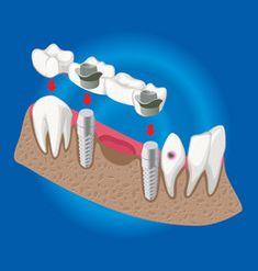 Isometric prosthetic stomatology template Vector Image Dental Implant Surgery, Dental Bridge, Dentistry, Adobe Illustrator, Vector Free, Wisdom Tooth, Graphic Design, Cover, Illustration