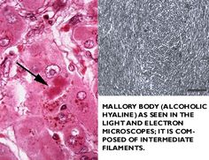 mallory bodies: eosinophilic, intracytoplasmic inclusion - Google Search