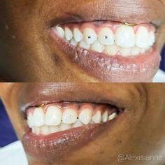 Diamond Teeth, Tooth Gem, Belly Button Rings, Piercing, Gems, Spice, Earrings, Jewelry, Ear Rings