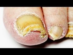 Nail Fungus Treatment - Home Remedy for Nail Fungus That Actually Works Nail Fungus can be embarrassing, unsightly, and next to impossible to get rid of. Over the counter topical treatments often don't reach down into the nail bed where fungus thrives