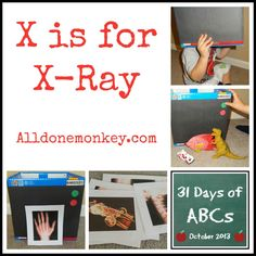 X is for X-Ray {31 Days of ABCs} - Alldonemonkey.com