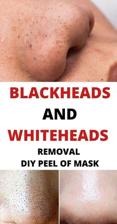 Black skin care Blackheads and whiteheads removal diy Peel off Mask Jacuzzi – Soak Your Inner Spirit Blackhead Mask, Blackhead Remover, Diy Peel Off Mask, Face Peel, Face Mapping, Diy Kleidung, Acne Causes, Get Rid Of Blackheads, How To Remove Whiteheads