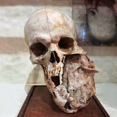 Skull with a mandibular tumor at the Bleuland cabinet in the University Museum Utrecht, Netherlands. Photo credit: © @marvinjarodd
