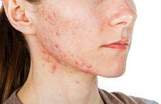 6 ingrediënten die acne van binnenuit behandelen.   gezonderleven.com