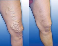Vein Treatment Clinic provides varicose vein treatment by expert doctors.We also treat thread veins, leg pain, bulging veins and other venous conditions. Our clinics are located in New York, San Diego, New Jersey and Texas. Visit a vein clinic near you. Varicose Vein Remedy, Varicose Veins Treatment, Toenail Fungus Treatment, Nail Treatment, Spider Vein Treatment, Blue Light Therapy, Menopause, Fibromyalgia, Pregnancy