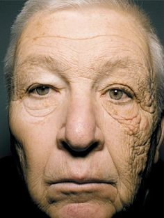 Lived-in face. (69 year old man). Wrinkles, lines under eyes and around mouth and forehead - Judge Turpin 2015