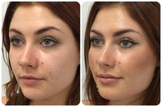 57 Best Lip injection images in 2018   Lip fillers, Lip