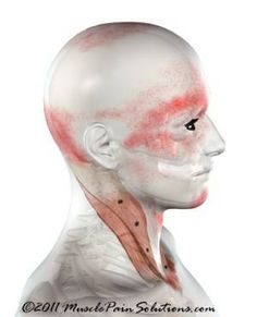 The SCM can cause a variety of symptoms and is the only muscle that creates such wide spread problems. Cervical instability can cause this muscle to overdevelop creating complex problems to unravel. Neck And Back Pain, Neck Pain, Stiff Neck Remedies, Sternocleidomastoid Muscle, Occipital Neuralgia, Tinnitus Symptoms, Scoliosis Exercises, Neck Exercises, Muscle Pain