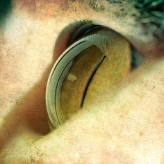 Eye #PatrickBorgenMD