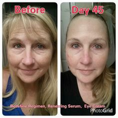 "Check out Christina Rook's before and after pictures! Incredible! Here's her story: ""45 DAY UPDATE: While I'm embarrassed to show these pictures to the public, they are proof that Rodan+Fields work. I used a popular department store regimen for over a year before trying R+F and paid about $100 more for a 60 day supply, versus my REDEFINE regimen. I LOVE MY RODAN+FIELDS skin care and so will you! Now, if only those ALLERGY circles would disappear."".....#lovemyvirtualfranchise"