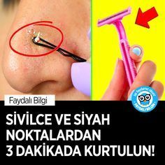 Sivilce ve Siyah Noktalardan 3 Dakikada Kurtulun Tips & Tricks, Keto Diet For Beginners, Weight Loss Transformation, Sewing Patterns Free, Beauty Secrets, How To Lose Weight Fast, Fitness Inspiration, Hair Makeup, Hair Beauty
