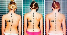 Remedies For Pain Exercises for a Healthy Spine - Back pains and aches are the most common problems. These short exercises will help you have a healthy spine. Scoliosis Exercises, Posture Exercises, Back Exercises, Fitness Exercises, Severe Back Pain, Neck And Back Pain, Diástase Abdominal, Healthy Spine, Back Pain Remedies