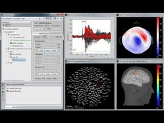 Brainstorm is a collaborative, open-source application dedicated to MEG/EEG/sEEG/ECoG data analysis (visualization, processing and advanced source modeling). References Page, Brainstorm, Science, Activities, Make It Yourself