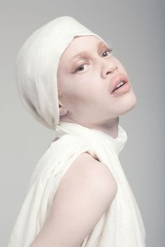 Diandra Forrest, African American albino model. Albinos are persecuted in some cultures, particularly in Africa.
