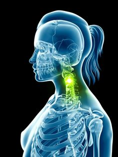 Nerve-Field Stimulation for Fibromyalgia - interestingly, a location for chronic neck pain sufferers, is a known spot for Lyme to congregate. A chiropractor will always need to adjust this spot! Fibromyalgia Treatment, Fibromyalgia Pain, Chronic Pain, Endometriosis, Chronic Fatigue Syndrome, Chronic Illness, Migraine, Adrenal Fatigue, Yoga