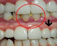 Chew On This Amazing Root To Melt Away Plaque And Prevent Cavities Home Remedies, Natural Remedies, Plaque Removal, How To Prevent Cavities, Teeth Care, Face And Body, Natural Skin Care, Body Care, Beauty Hacks