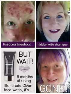 Rosacea sufferers, heres a face wash that reduces the flares and clears the skin