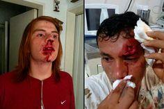 ¡BRUTAL ATAQUE! Paramilitares amparados por la PNB arremetieron contra estudiantes (Fotos)