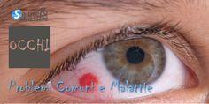 Problemi Comuni Dell'Occhio e Malattie: Come Riconoscere I Sintomi