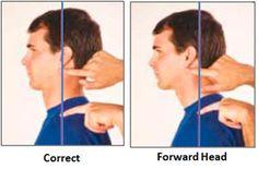 Common Posture Problems & How To Fix Them - BuiltLean